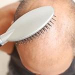 Saç Dökülmesi Tedavi Yöntemleri