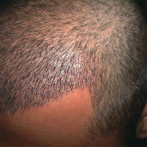 Hair Transplantation in Antalya